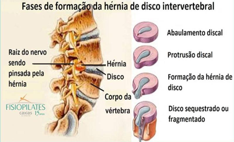 Fases da formação da hérnia de disco