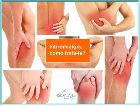 Como tratar a fibromialgia