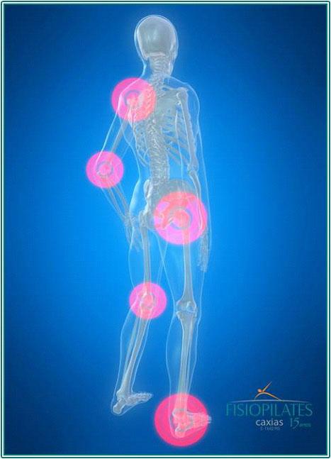 Dores no corpo que podem ser causadas pela má postura