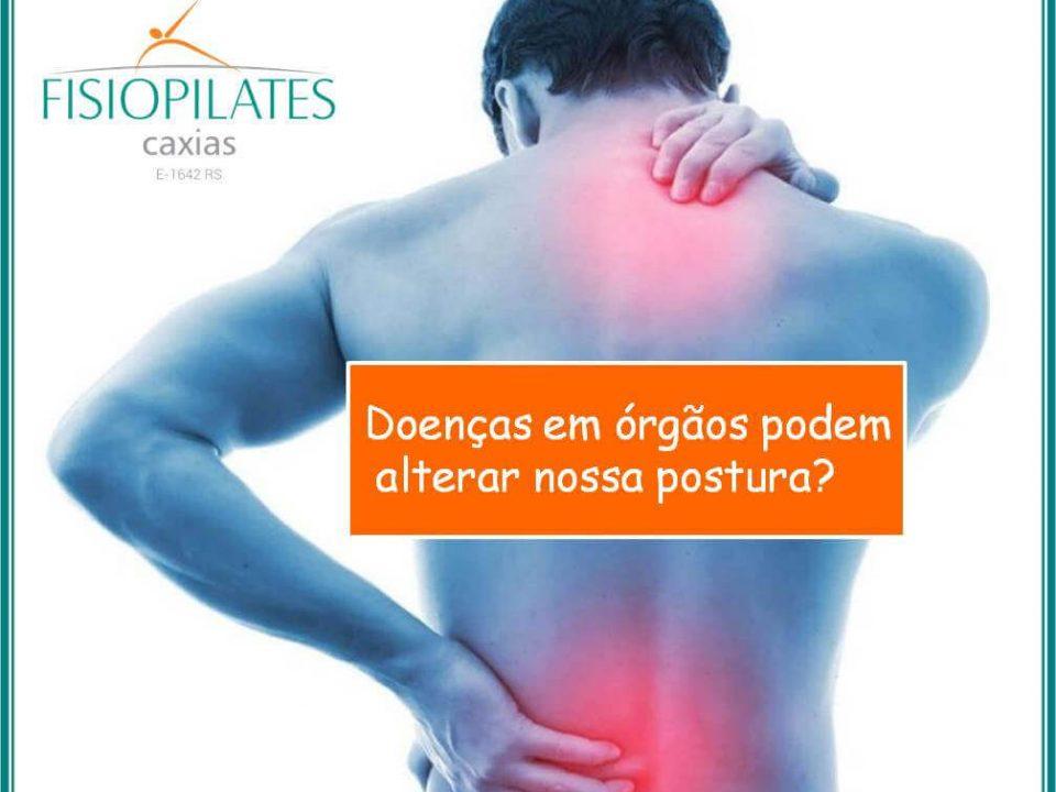 Doenças em órgãos afetam a postura?